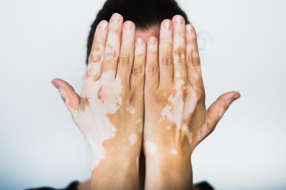 Man holding hands with Vitiligo